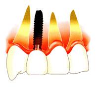 歯を一本失った場合2